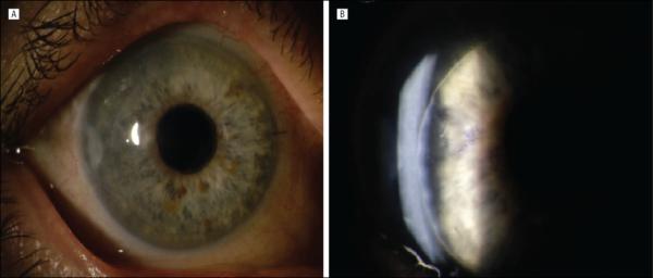 Скопление жидкости между слоями фиброзной оболочки глаза