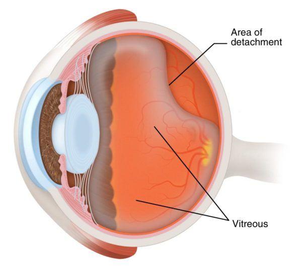 Схема, показывающая отслоение гелеподобного вещества задней камеры глаза