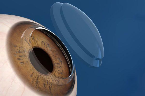 Роговица - это структурное звено оптики глаза