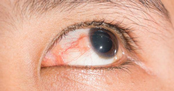Симптомы должны насторожить и стать причиной неотложного обращения к врачу.