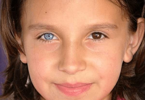 Девочка с разными глазами.