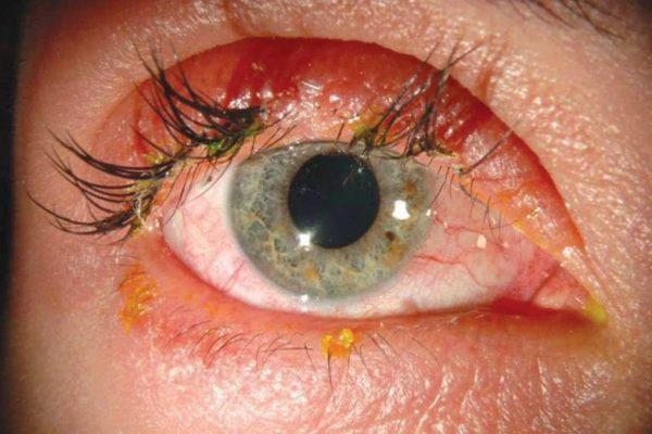 Травматическое поражение глазного яблока.