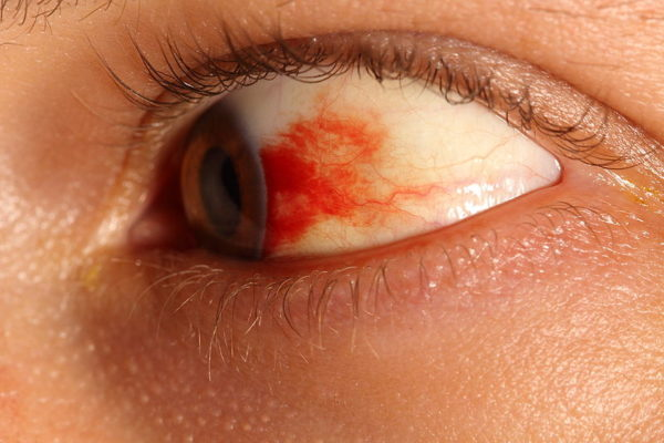 признаки геморрагии глаза