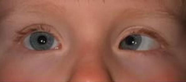 как проявляется хаотичное движение глаз