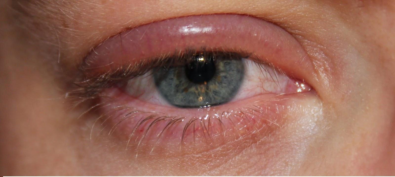 Как быстро убрать опухоль с глаз