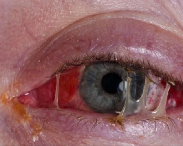 Идет гной из глаз: причины, заболевания, лечение