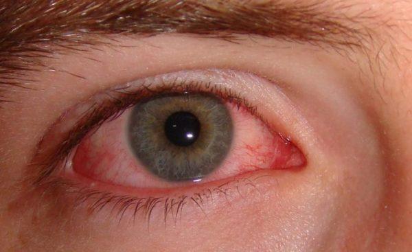 Воспаленный глаз пациента.