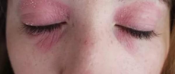 Как убрать красноту под глазами