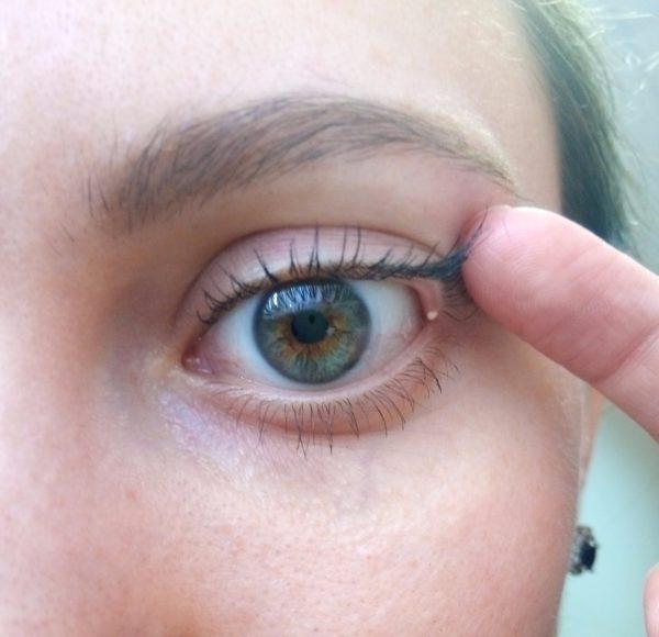 виды новообразований на коже вокруг глаз
