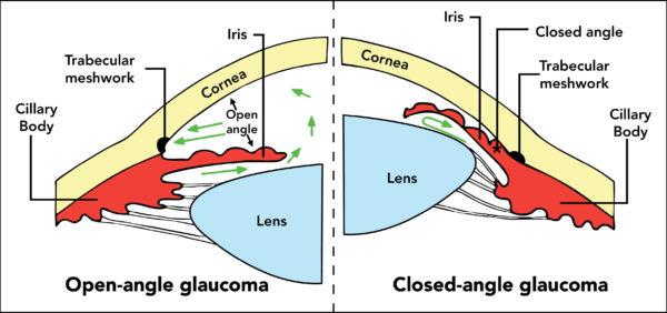 два вида заболевания глаз