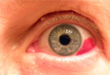 кровотечение в глаз можно увидеть в зеркале