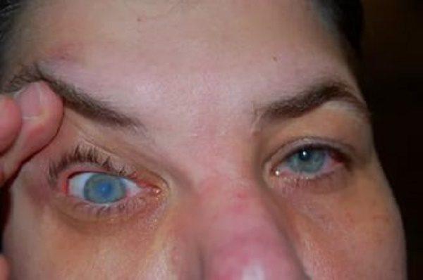 Глаз, пораженный заболеванием.