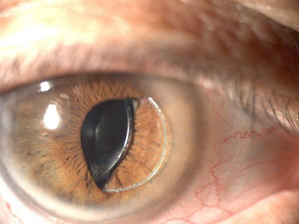 дистрофические глазные проблемы