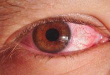 инфекция в глазах