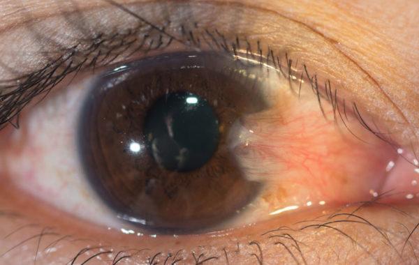 Глаз, пораженный уф-излучением.