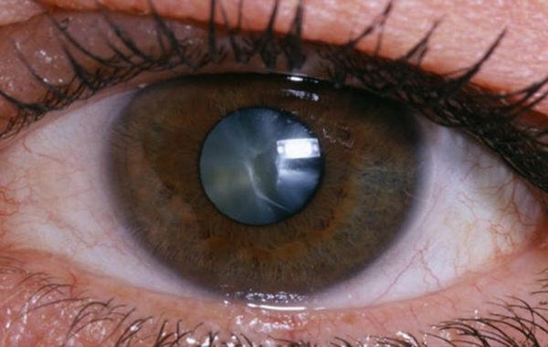 Зрелая стадия катаракты.